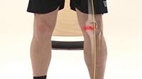 untreated knee